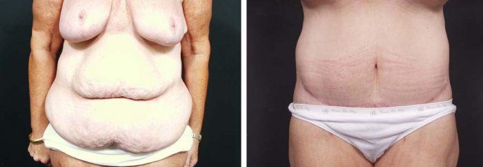 Body Lift Patient 4a | Dr. Shaun Parson Plastic Surgery Scottsdale Arizona