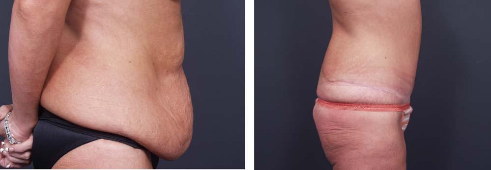 Body Lift Patient 5a | Dr. Shaun Parson Plastic Surgery Scottsdale Arizona