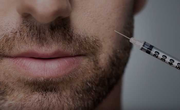 Botox Injections Scottsdale | Dr. Shaun Parson Plastic Surgery
