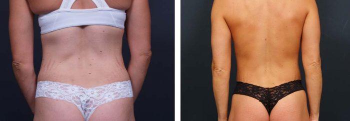 Brazilian Butt Lift Patient 1 | Dr. Shaun Parson Plastic Surgery Scottsdale Arizona