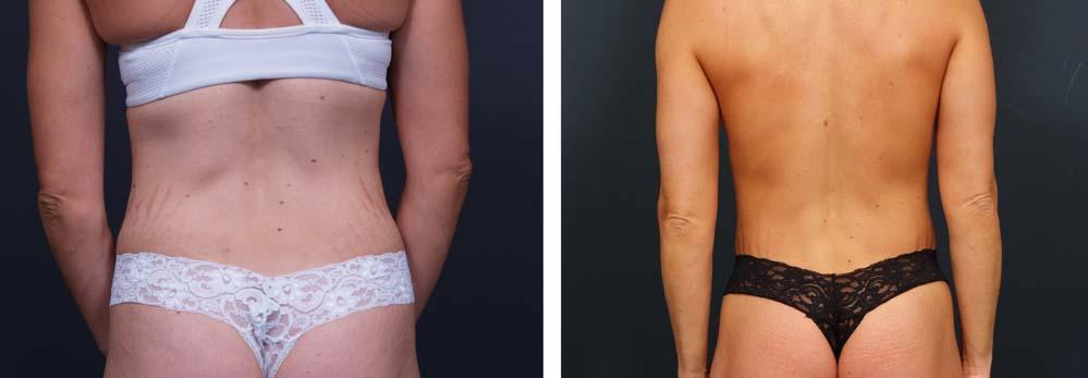 Brazilian Butt Lift Patient 1   Dr. Shaun Parson Plastic Surgery Scottsdale Arizona
