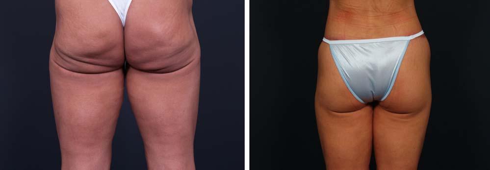 Brazilian Butt Lift Patient 2   Dr. Shaun Parson Plastic Surgery Scottsdale Arizona