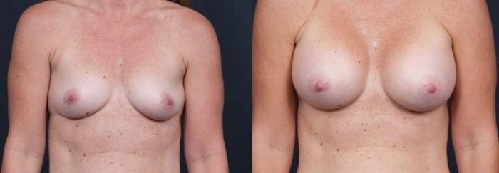 Breast Augmentation Patient 10a | Dr. Shaun Parson Plastic Surgery Scottsdale Arizona