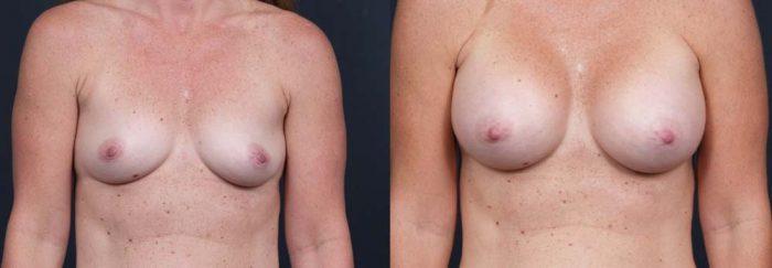 Breast Augmentation Patient 10a | Dr. Shaun Parson Plastic Surgery Scottsdale Arizona