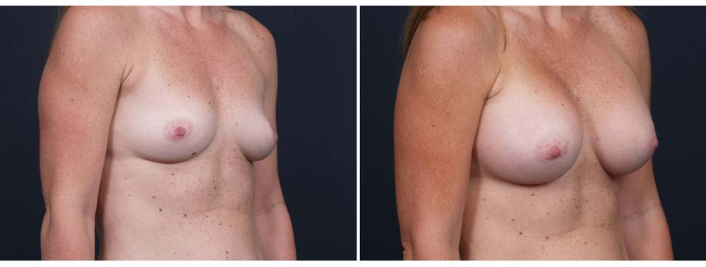 Breast Augmentation Patient 10b | Dr. Shaun Parson Plastic Surgery Scottsdale Arizona