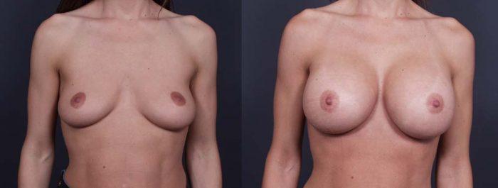 Breast Augmentation Patient 11a | Dr. Shaun Parson Plastic Surgery Scottsdale Arizona