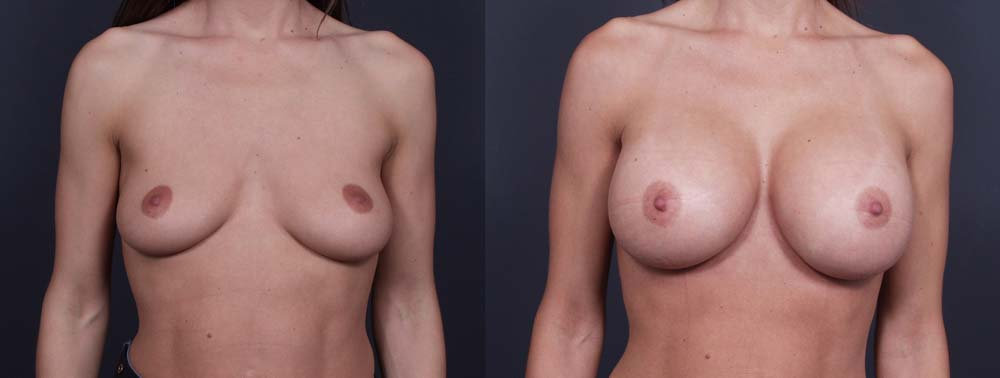 Breast Augmentation Patient 11a | Dr. Shaun Parson Plastic Surgery Scottsdale Arizona