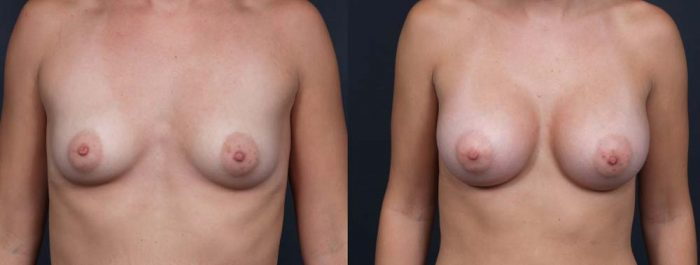 Breast Augmentation Patient 12a | Dr. Shaun Parson Plastic Surgery Scottsdale Arizona
