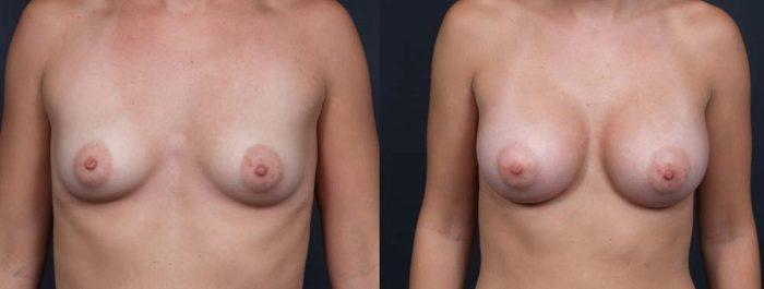 Breast Augmentation Patient 12a | Dr. Shaun Parson Plastic Surgery Scottsdale Arizona