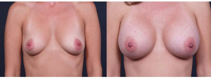 Breast Augmentation Patient 13b | Dr. Shaun Parson Plastic Surgery Scottsdale Arizona