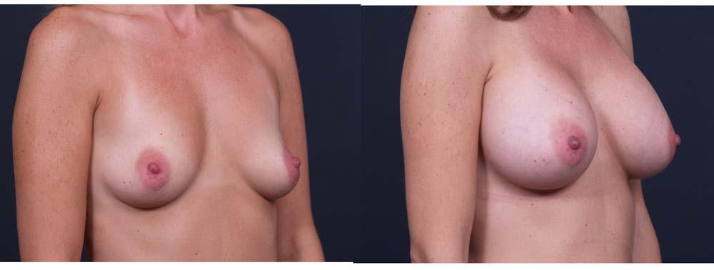 Breast Augmentation Patient 13b | Dr. Shaun Parson Plastic Surgery Scottsdale Arizona