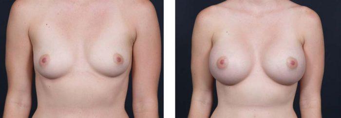 Breast Augmentation Patient 14a | Dr. Shaun Parson Plastic Surgery Scottsdale Arizona