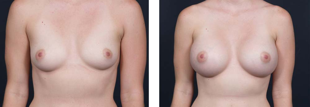 Breast Augmentation Patient 14a | Dr. Shaun Parson Plastic Surgery Scottsdale Arizona