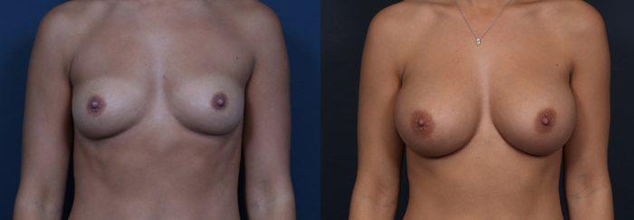 Breast Augmentation Patient 15a | Dr. Shaun Parson Plastic Surgery Scottsdale Arizona