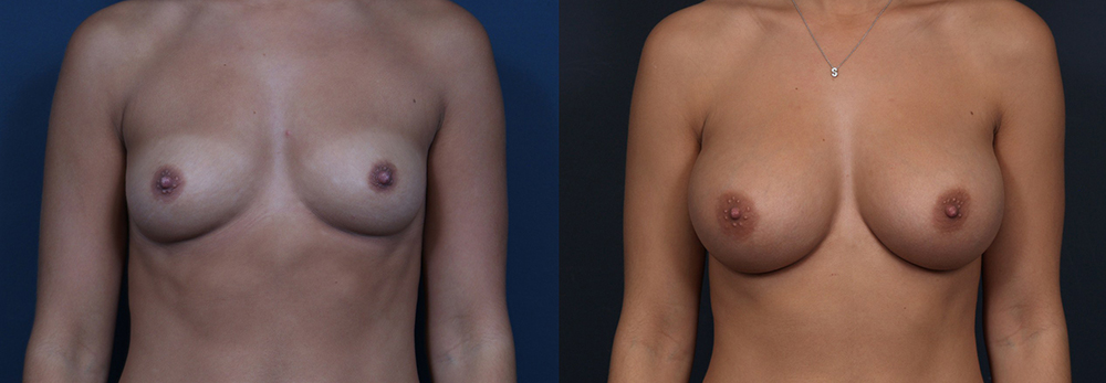 Breast Augmentation Patient 15a | Dr. Shaun Parson Plastic Surgery Scottsdale Arizona