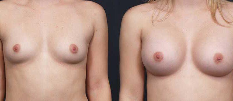 Breast Augmentation Patient 16a | Dr. Shaun Parson Plastic Surgery Scottsdale Arizona