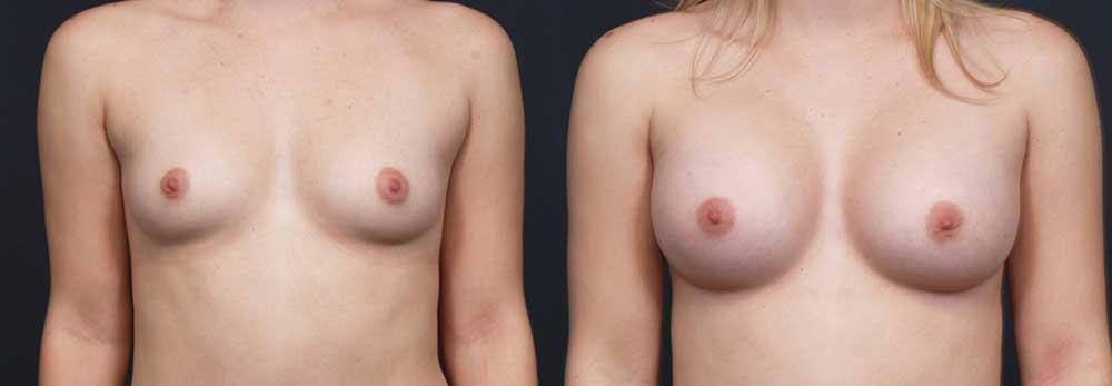 Breast Augmentation Patient 16a   Dr. Shaun Parson Plastic Surgery Scottsdale Arizona