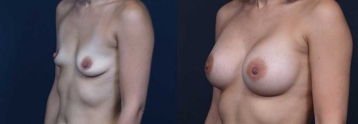Breast Augmentation Patient 17 | Dr. Shaun Parson Plastic Surgery Scottsdale Arizona