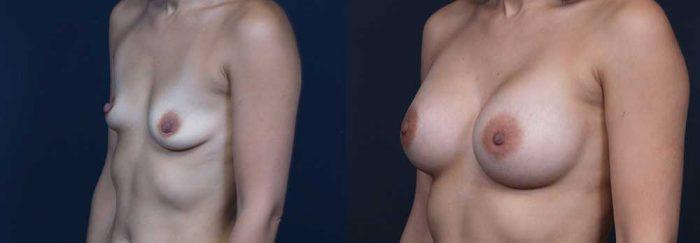 Breast Augmentation Patient 17 | Dr. Shaun Parson Plastic Surgery Scottsdale Arizona