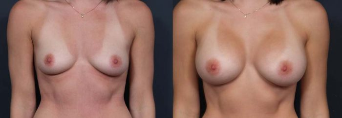 Breast Augmentation Patient 18a | Dr. Shaun Parson Plastic Surgery Scottsdale Arizona
