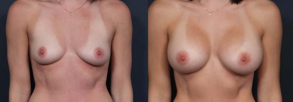 Breast Augmentation Patient 18a | Dr. Shaun Parson Plastic Surgery Scottsdale Arizona