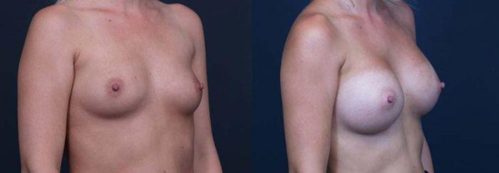 Breast Augmentation Patient 19 | Dr. Shaun Parson Plastic Surgery Scottsdale Arizona