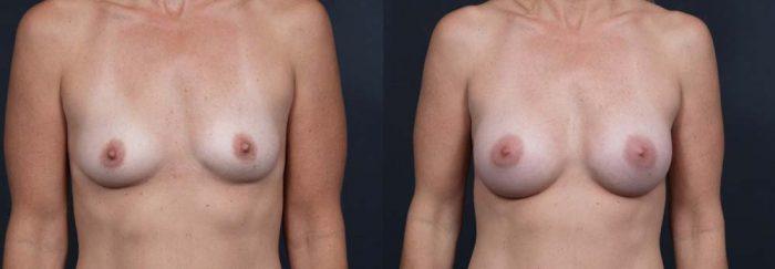 Breast Augmentation Patient 1a | Dr. Shaun Parson Plastic Surgery Scottsdale, Arizona