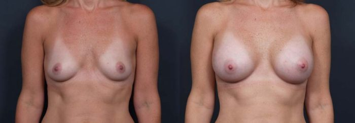 Breast Augmentation Patient 20a | Dr. Shaun Parson Plastic Surgery Scottsdale Arizona
