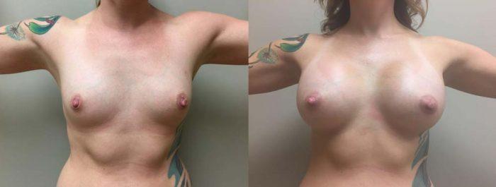 Breast Augmentation Patient 21b | Dr. Shaun Parson Plastic Surgery Scottsdale Arizona