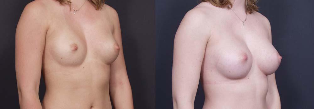 Breast Augmentation Patient 2a | Dr. Shaun Parson Plastic Surgery Scottsdale Arizona