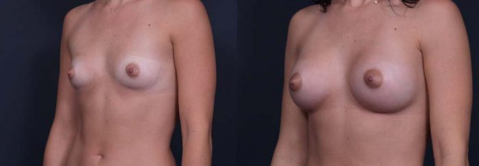 Breast Augmentation Patient 3a | Dr. Shaun Parson Plastic Surgery Scottsdale Arizona