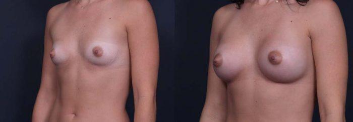 Breast Augmentation Patient 3a | Dr. Shaun Parson Plastic Surgery Scottsdale Arizona
