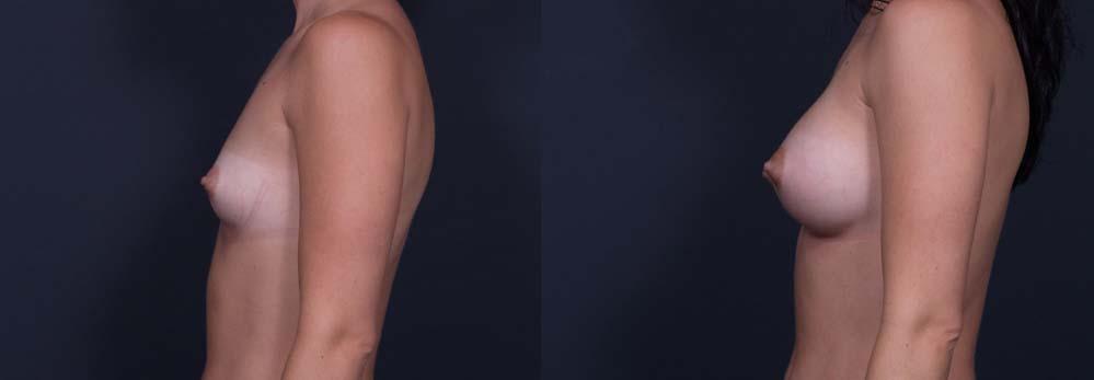 Breast Augmentation Patient 3b| Dr. Shaun Parson Plastic Surgery Scottsdale Arizona