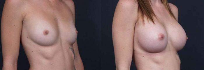 Breast Augmentation Patient 4b | Dr. Shaun Parson Plastic Surgery Scottsdale Arizona