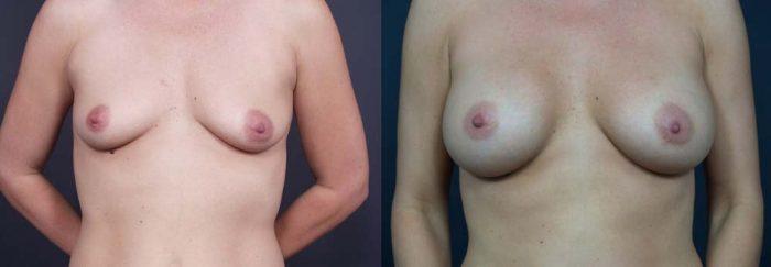 Breast Augmentation Patient 5a | Dr. Shaun Parson Plastic Surgery Scottsdale Arizona