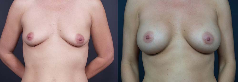 Breast Augmentation Patient 5a | Dr. Shaun Parson Plastic Surgery Scottsdale Arizona