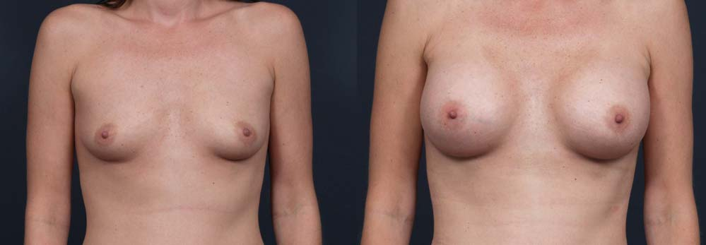 Breast Augmentation Patient 7b | Dr. Shaun Parson Plastic Surgery Scottsdale Arizona
