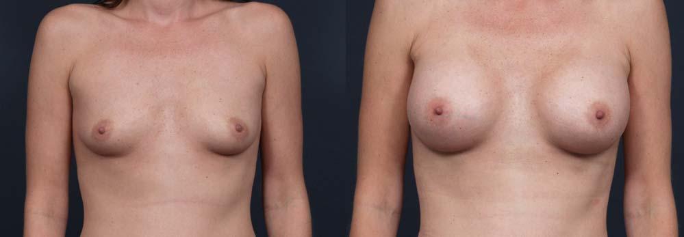 Breast Augmentation Patient 7b | Dr. Shaun Parson Plastic Surgery Scottsdale Arizona