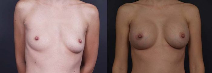 Breast Augmentation Patient 8a | Dr. Shaun Parson Plastic Surgery Scottsdale Arizona