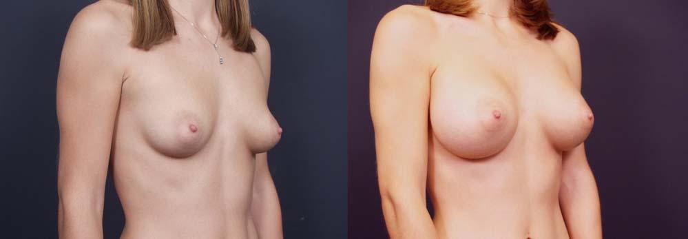 Breast Augmentation Patient 9b | Dr. Shaun Parson Plastic Surgery Scottsdale Arizona