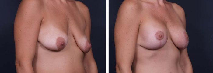 Breast Lift Aug Patient 12a | Dr. Shaun Parson Plastic Surgery Scottsdale Arizona