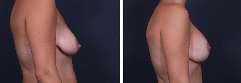 Breast Lift Aug Patient 12a   Dr. Shaun Parson Plastic Surgery Scottsdale Arizona