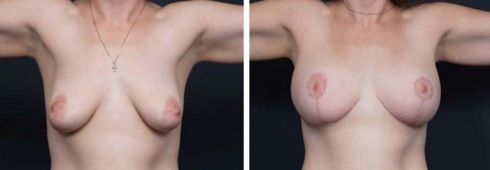 Breast Lift Aug Patient 13a | Dr. Shaun Parson Plastic Surgery Scottsdale Arizona