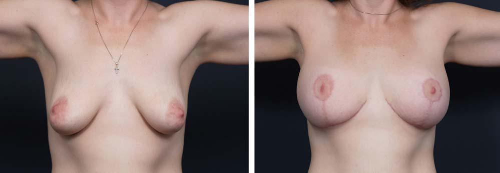 Breast Lift Aug Patient 13a   Dr. Shaun Parson Plastic Surgery Scottsdale Arizona