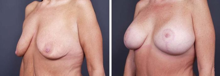Breast Lift Aug Patient 14a | Dr. Shaun Parson Plastic Surgery Scottsdale Arizona