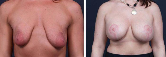 Breast Lift Aug Patient 15a | Dr. Shaun Parson Plastic Surgery Scottsdale Arizona