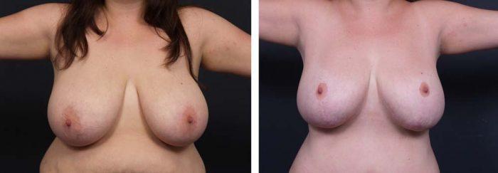 Breast Lift Aug Patient 16 | Dr. Shaun Parson Plastic Surgery Scottsdale Arizona