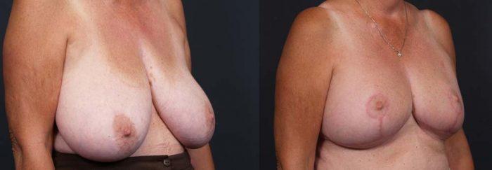 Breast Lift Patient 10a | Dr. Shaun Parson Plastic Surgery Scottsdale Arizona