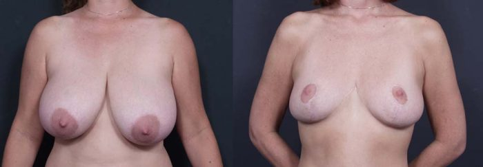 Breast Lift Patient 1a | Dr. Shaun Parson Plastic Surgery Scottsdale Arizona