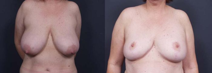 Breast Lift Patient 2 | Dr. Shaun Parson Plastic Surgery Scottsdale Arizona